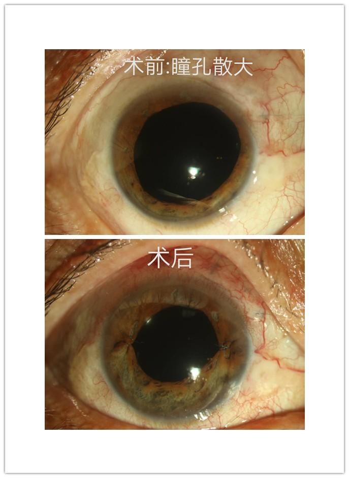 打结、安阀门、缝晶体,一次手术解决多个眼部大问题!