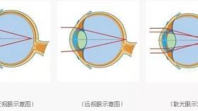 【护眼小知识】防控近视小方法,总有一种能做到!